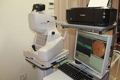 OCT(網膜断層撮影装置)